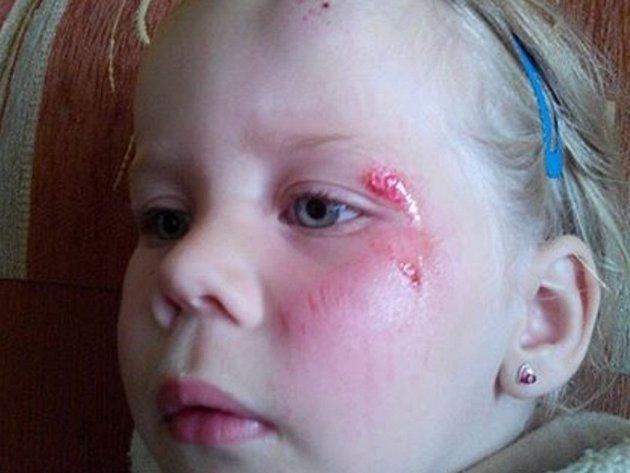 Dívka, která se zranila na nové atrakci v Babyloně.