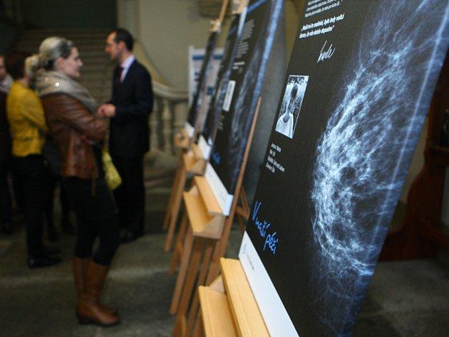 Jak vypadají ženská ňadra na snímcích z mamografu  ukazuje  výstava ve frýdlantské radnici.