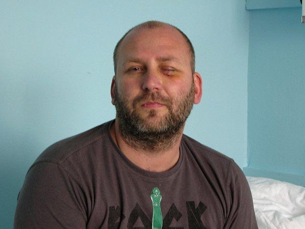 Napadený muž Ladislav F.