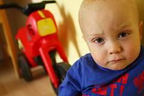 ŠTĚPÁNEK teď nesmírně statečně snáší chemoterapii. Po silných dávkách se mu dělají v puse puchýřky, přestal jíst, přestal růst. Ještě měsíc a půl musí vydržet nejhorší útrapy. Pak se dávky začnou pomalu snižovat, ale boj se zákeřnou nemocí ještě neskončí.