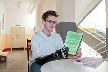 Jonáš Kešnar získal díky sbírce Konta Bariéry novou elektronickou protézu.
