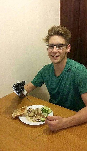 Jonáš Kešnar se snovou elektronickou protézou učí například jíst vidličkou a nožem.