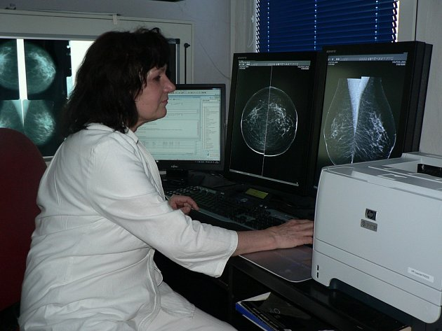 Od konce loňského roku má pelhřimovské mamografické centrum Agur nový digitální přístroj.