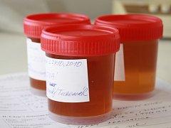 Tři ze vzorků, které v pátek přinesli lidé na prachatickou hygienickou stanici.