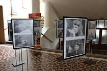 Výstava Rettův syndrom trvá do 16. května.