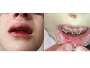 Matka osmileté dívky uveřejnila na sociální síti fotografie své dcery (8) před (vlevo) a po ošetření zranění.