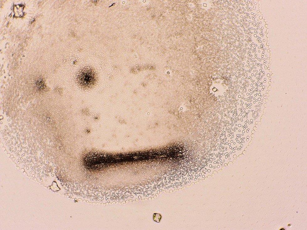 Členové astronomického kroužku při valašskomeziříčské hvězdárně pronikli do základů mikrobiologie (foto z mikroskopu).