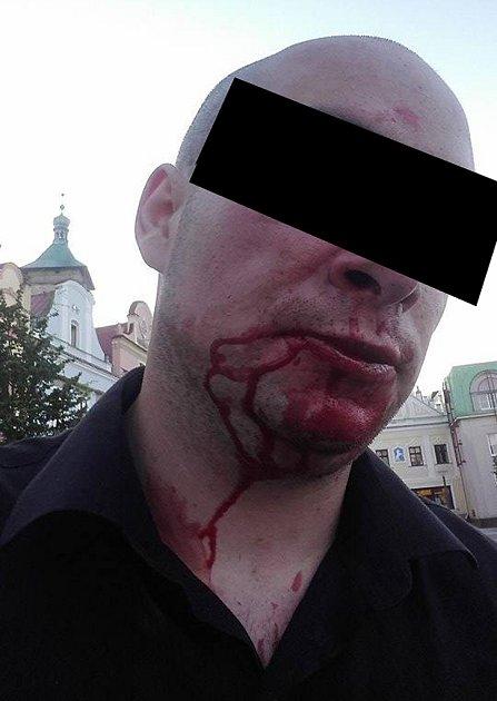 Takto dopadl v sobotu ráno muž z Havlíčkova Brodu, který byl napaden skupinkou cizinců v havlíčkobrodské Žižkově ulici.