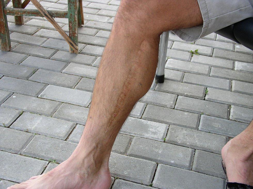 Jizvy na noze muže z Přibyslavi, po němž Kubát hodil granát.