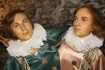 Siamská dvojčata Giacomo a Giovann Batista Tocci pocházela z Itálie a narodili se v roce 1875. Repro: