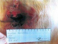 Do čáslavské nemocnice byl pacient převezen s gangrénou obou chodidel.