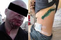 Na snímku vpravo je vidět, jak dopadl mladík, kterého jeden z Rumunů napadl 25. června v Humpolci. Na levém snímku je muž z Havlíčkova Brodu, který byl zraněn skupinkou cizinců v sobotu 2. července v havlíčkobrodské Žižkově ulici.