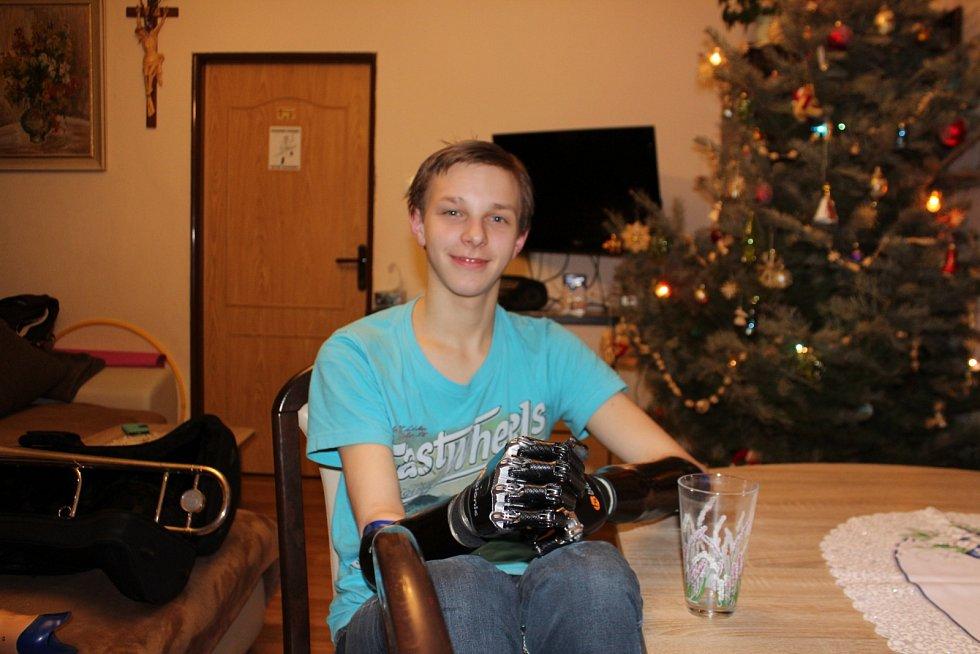 Čtrnáctiletý Honzík z Jičínska získal díky dárcům nové protézy