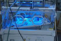 Při fototerapii se novorozenec se speciálními brýlemi na očích umístí pod zdroj světla.
