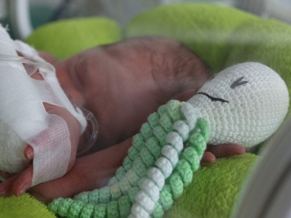 Na novorozeneckém oddělení JIP v Nemocnici Jihlava mají nové pomocníky. Pletené chobotnice.