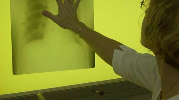 Lidem zdarma vyšetří plíce. Test odhalí vážnou plicní chorobu