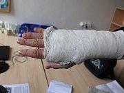 Cizinec má po incidentu v obchodním domě zlomenou ruku a naražená žebra.