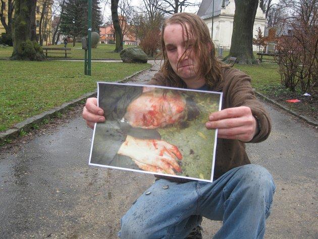 Jiří Šlechtický z Jihlavy se stal před lety obětí agresivního útoku. Fotografii pořídil jeho kamarád, násilníci dostali podmínečné tresty.