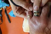 Hasiči prstýnek museli odstranit z prstu tím, že ho pomalu přepilovali, roztáhli a sundali.