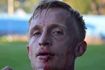 TĚŽKÉ K.O. Náchodský Jan Hable inkasoval v 85. minutě od hostujícího Fikejze úder předloktím a ze zápasu musel s krvavým zraněním odstoupit. Pro vysokomýtského hříšníka však zápas po červené kartě rovněž skončil.