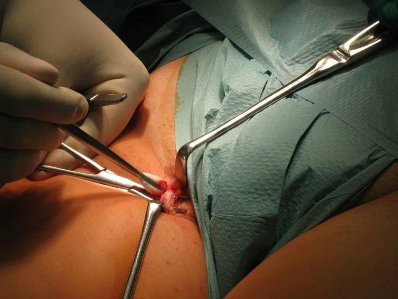 """Dvě jizvičky zůstanou po operaci křečových žil """"mikrovlnkou""""."""