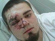Střepy pořezaly mladíkovi obličej.