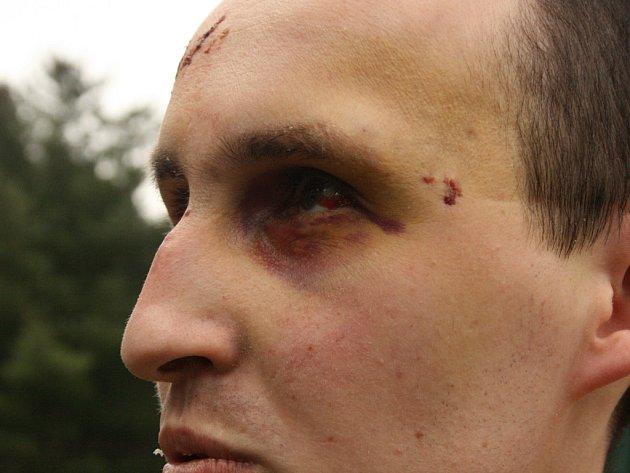 Karel Lepeška z Mladé Boleslavi ukazuje obličej, který mu doslova zmalovali dva cizinci na třídě V. Klementa v Mladé Boleslavi. Napadli ho bez jakéhokoli důvodu, brutálně ho mlátili a kopali. Lepeška skončil v nemocnici, viníky hledá policie.
