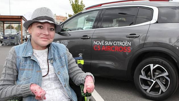 Petra Koudelková trpí nemocí motýlích křídel a auto s automatickou převodovkou by jí hodně ulehčilo život