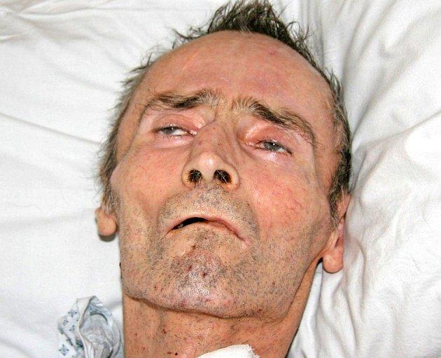 Současná fotografie neznámého muže. Pravděpodobné je, že za čtyři měsíce pobytu ve zdravotnických zařízeních velmi zhubl.