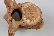Projevy difuzní idiopatické hyperostózy skeletu (DISH) na kostnicovém materiálu z Bělé pod Bezdězem z roku 2014.