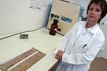 Zdravotní laborantka Radomíra Lišková pracuje na histologii – pododdělení patologie již 20 let. Na tácku má připravené vzorky, které lékař pod mikroskopem vyhodnotí.