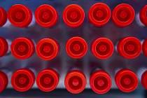 Odběr vzorků pro testování na nákazu koronavirem, ilustrační foto