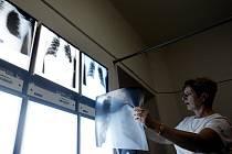 Nejčastější formou TBC je tuberkulóza plic. Projevuje se jako zánět plicní tkáně. Lékař diagnózu stanoví i na základě rentgenových snímků hrudníku.