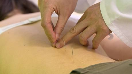 Akupunktura. Ilustrační foto