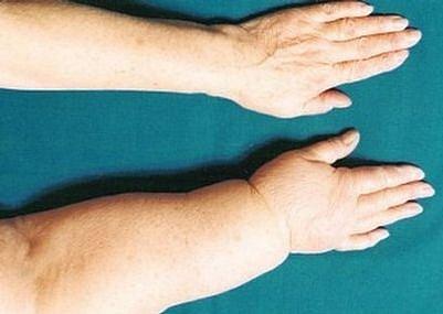 Lymfedém je hmatatelný a viditelný otok části těla, který je podmíněn poruchou transportu lymfy mízními cévami.