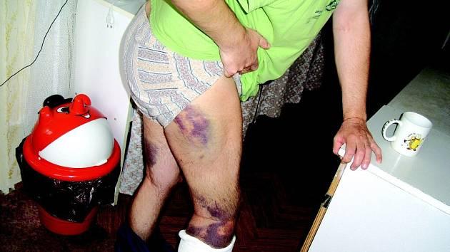 Podlitiny na levé a pravé noze poškozeného.