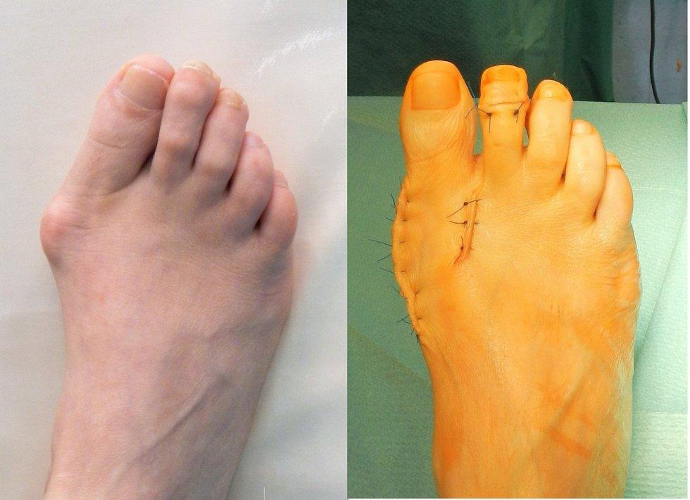 Operace deformit přednoží.