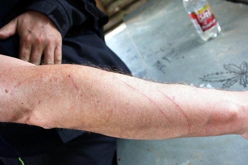 Škrábance na rukách jana Pardubského jako připomínka šplhání skrz křoví