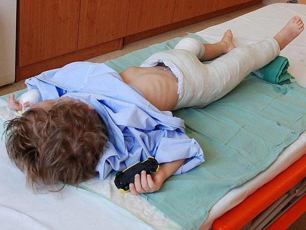 Tříletý chlapec po operaci se zlomeninou stehenní kosti po velmi tvrdém pádu. Sádru měl asi měsíc.