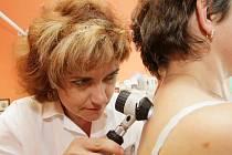 Vyšetření melanomu