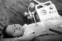 Těžce postižená dcerka manželů Blaťákových. Ti nyní žalují olomouckou nemocnici za pochybení u porodu