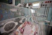 Miminko v inkubátoru. Ilustrační foto
