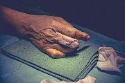 Olomoučtí plastičtí chirurgové pomohli ženě, které část prostředníčku ukousl bojový pes. Ruku jí zachránili akutním přenosem prstu z nohy na postižené místo.