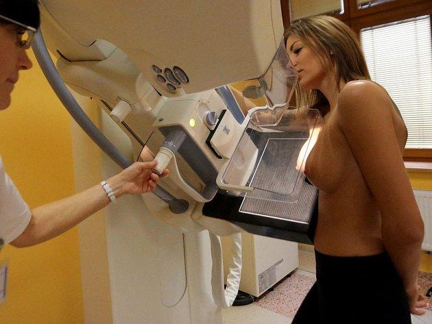 Mamograf. Ilustrační foto