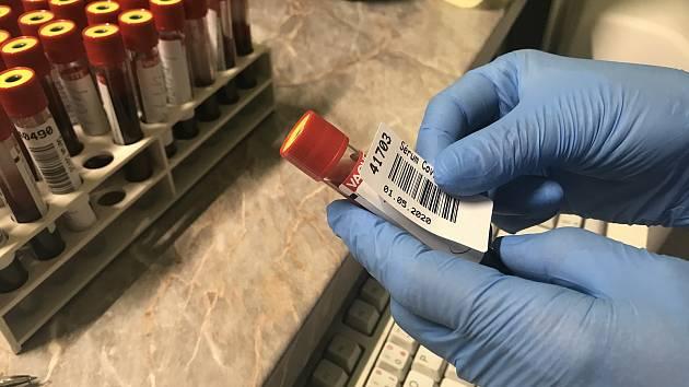 Příprava vzorků pro testy na koronavirus v Oddělení klinické biochemie Fakultní nemocnice Olomouc. Ilustrační foto