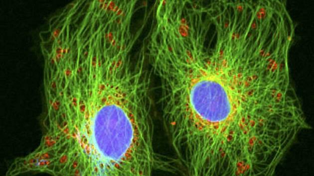 Rakovinné buňky s průměrem okrouhlých jader asi 12 mikrometrů ve speciálním mikroskopu na zkoumání živých buněk. Ilustrační foto