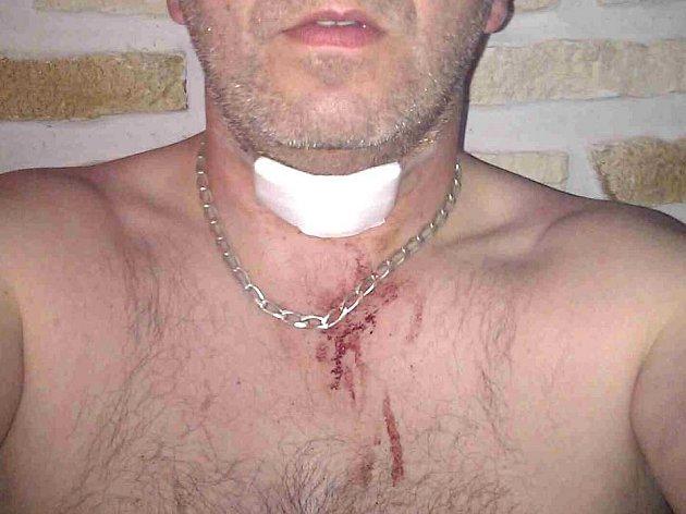 Sedmatřicetiletý řidič olomoucké MHD se zraněním, které mu způsobil muž s nožem na konečné zastávce