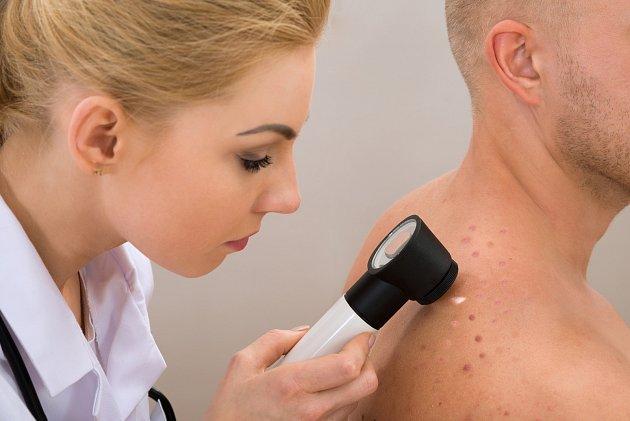 Zhoubný melanom kůže patří mezi velmi závažné druhy rakoviny, neboť začíná relativně brzy metastazovat do dalších částí a orgánů lidského těla. Podle statistik na něj zemře kolem 400 osob ročně.