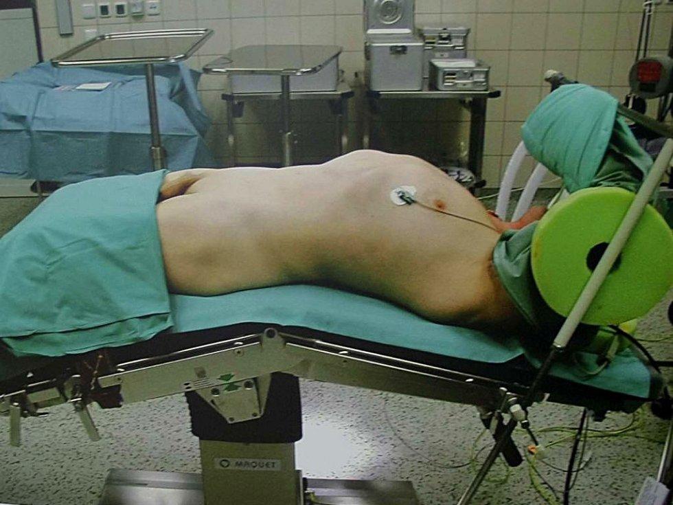 Příprava na operaci prostaty. Ze série Tichá nemoc fotografa Jindřicha Štreita