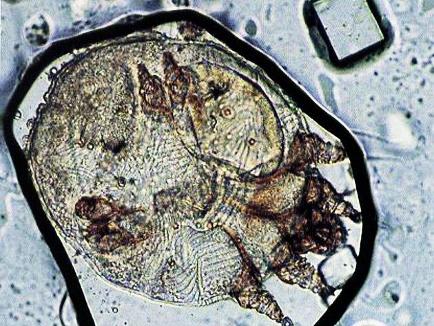 Roztoč zákožky svrabové pod mikroskopem